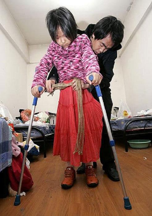 В Пекине на примерке протезов.