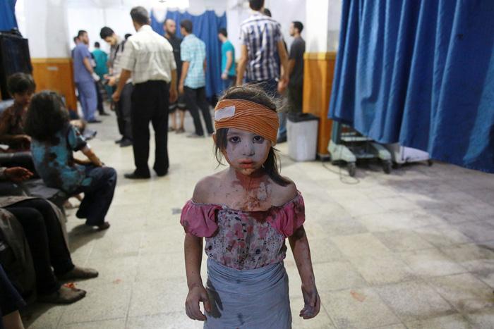 Раненая девочка в больнице города Дума, к востоку от Дамаска, после авиационной атаки 22 августа 2015г.