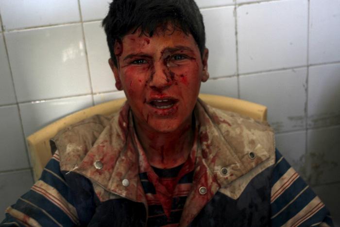 Мальчик, раненый в деревне Аин Ларуз при атаке сил, лояльных Президенту Сирии. 15 мая 2015г.