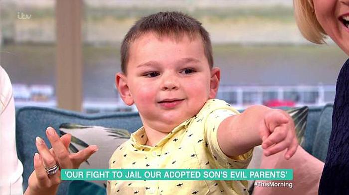 Малыш, несмотря на свое увечье, выглядел во время съемок программы очень жизнерадостным.