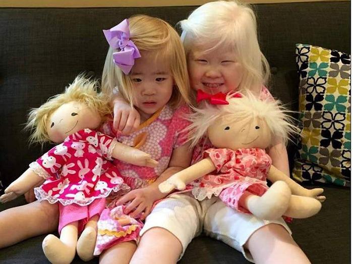 Две сестрички с альбинизмом получили куклы, похожие на них самих.