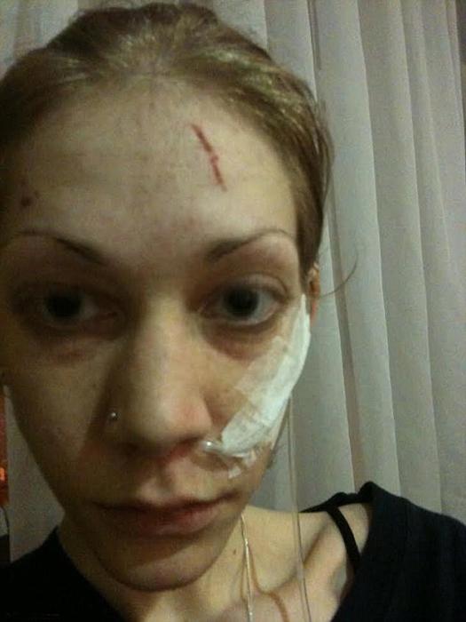 Первые несколько недель девушке давали седативные препараты, так как она отказывалась лечиться.
