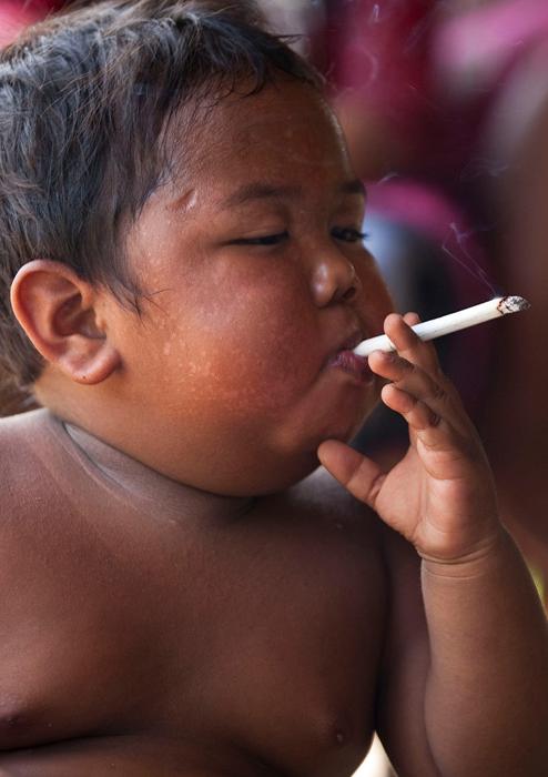 2-летний Арди Ризал из Индонезии.