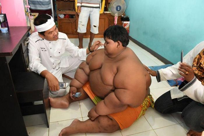 С весом в 192 кг мальчику было трудно ходить и даже трудно спать.