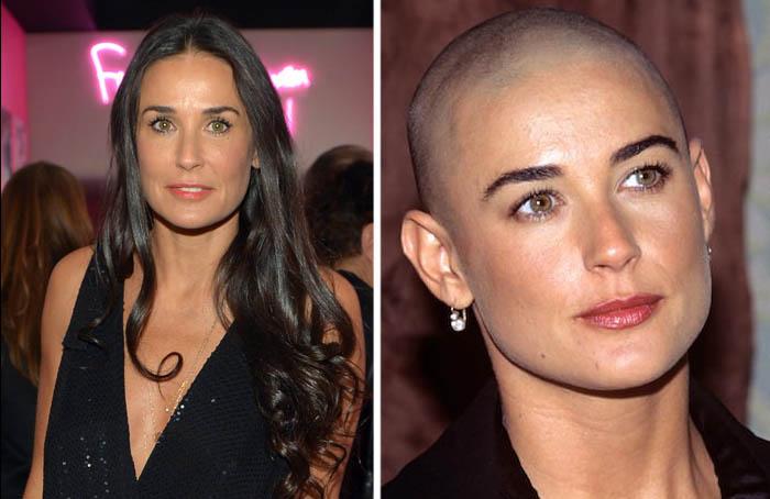 Hair Loss Cure 2020 - A Hair Loss News Blog