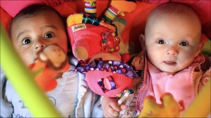 Джарани и Калани - разнорасовые близнецы.