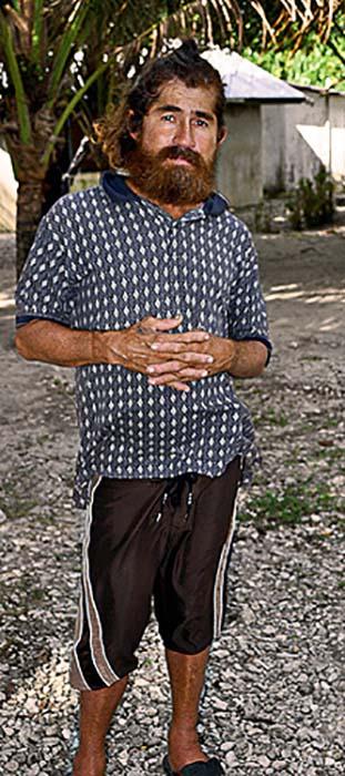 Хосе в первые дни после спасения.