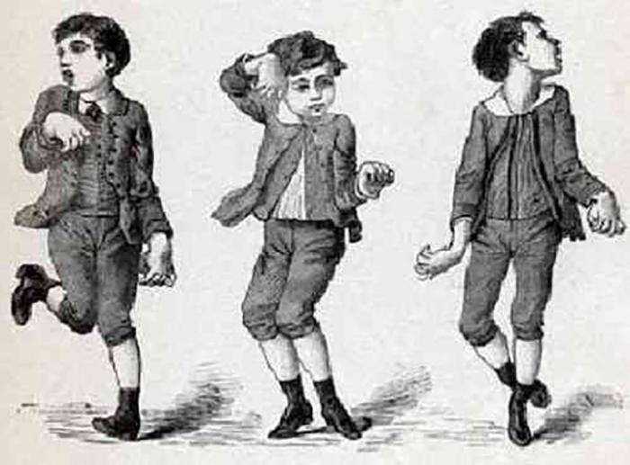 Изображение мальчика, подверженного хореомании.