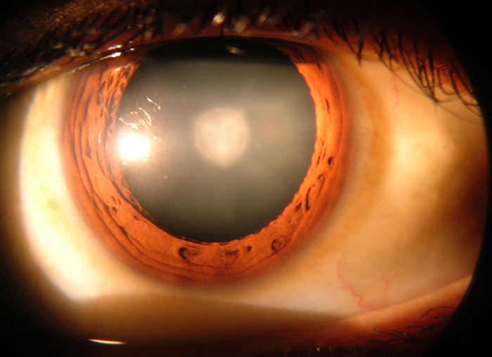 Катаракта - помутнение хрусталика глаза.