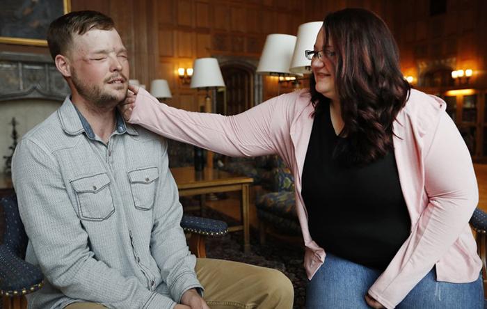 Лили Росс встретила мужчину, которому пересадили лицо ее мужа.