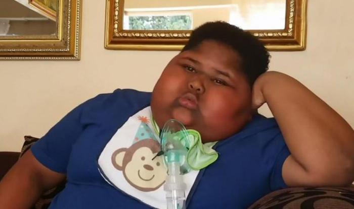 10-летний мальчик, вес которого сейчас составляет 90 кг.