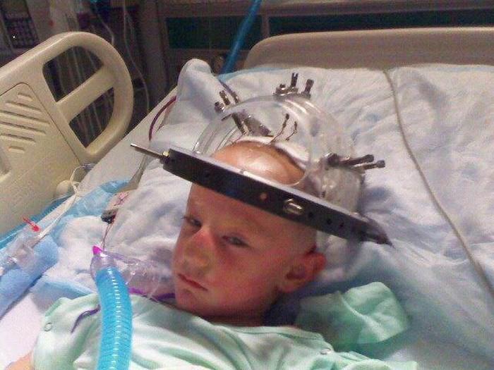 К девяти годам Гарольд перенес несколько серьезных операций.