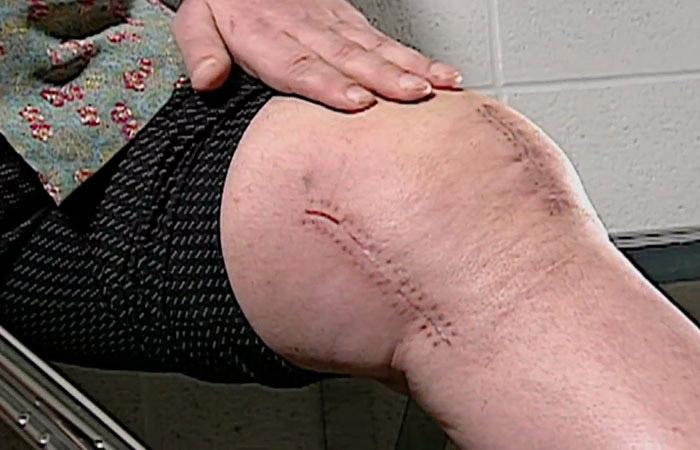 Самые большие проблемы со здоровьем Андре были связаны с постоянными болями в суставах.