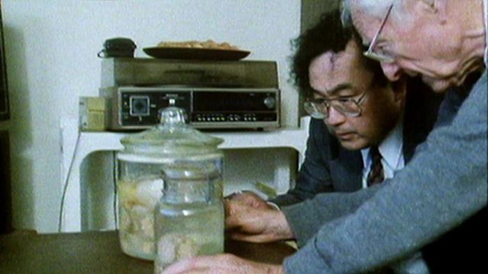 Доктор Томас Харви исследует мозг Альберт Эйнштейна.