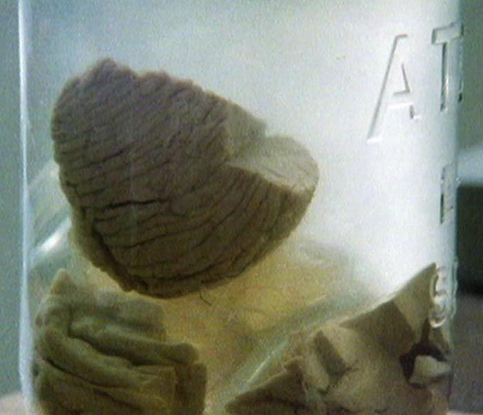 Кусочек мозга в формалине.