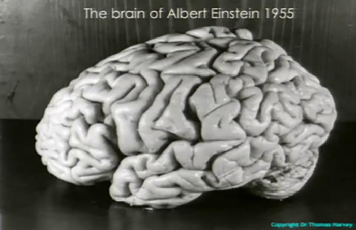 Одна из фотографий мозга Эйнштейна.
