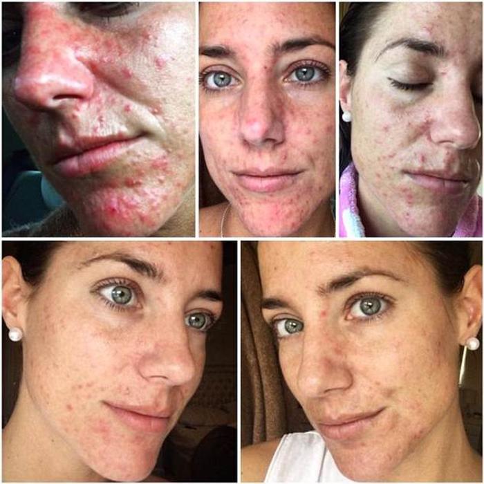 Лечение было долгим, оно плохо сказалось на состоянии кожи Эмми.