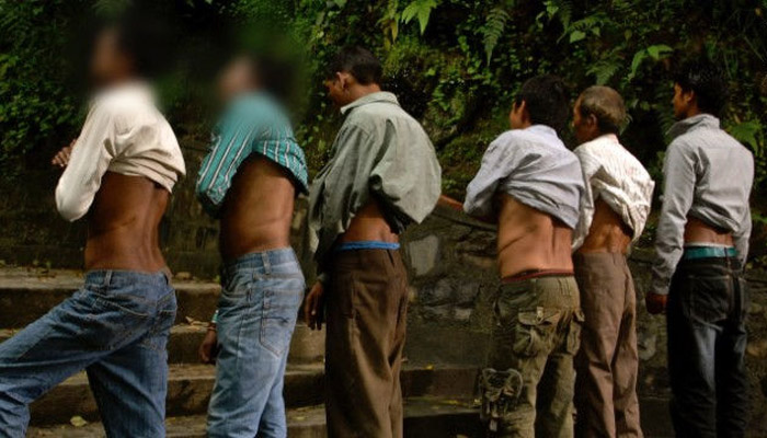 Мужчины деревни Хоксе в Непале демонстрируют шрамы от операции после удалении почек.