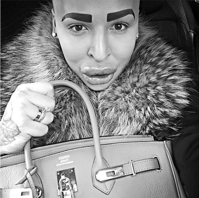После более 50 операций внешность Джордана полностью изменилась. Instagram jordanjamesparke.