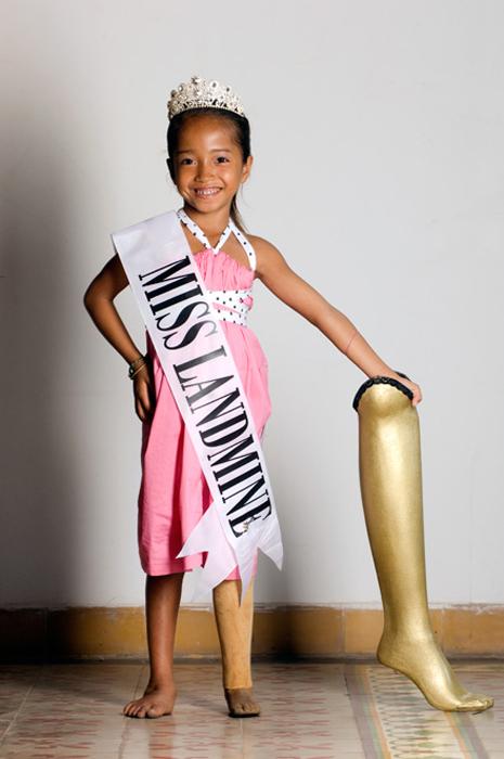 Конкурс Miss Landmine  в Камбодже.