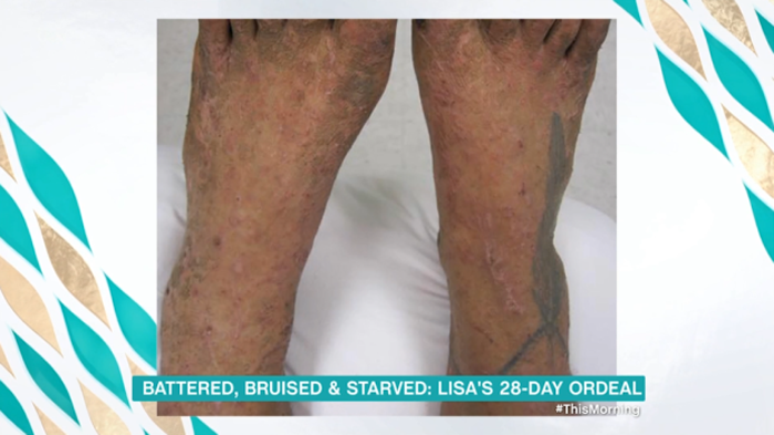 Все тело девушки было покрыто царапинами и укусами насекомых.