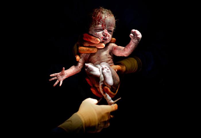 Лианне. 13 секунд после рождения.