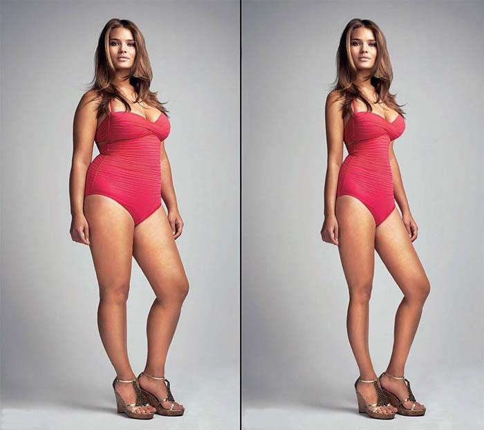 Во Франции столкнулись с серьезной проблемой анорексии среди подростков.