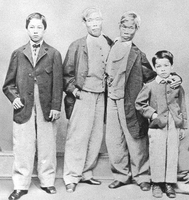 Сиамские близнецы со своими детьми.