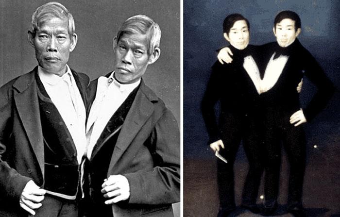 Сиамские близнецы Чанг и Энг Банкеры.