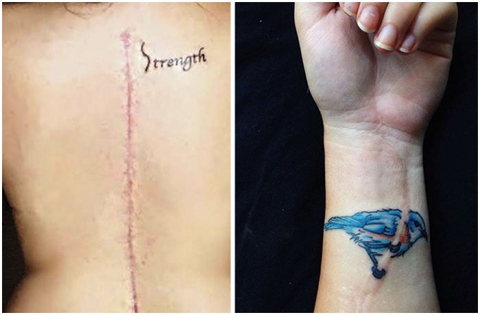 Татуировки, закрывающие шрамы.