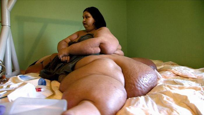 Майра Розалес весила 470 кг.
