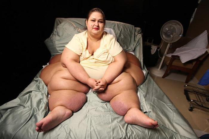Из-за избытка жира ноги Майры казались деформированными.