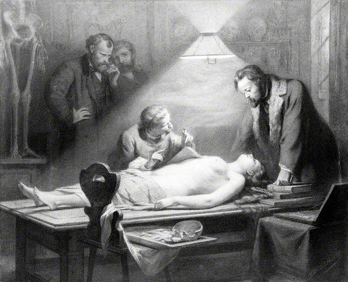Вскрытие молодой девушки под руководством доктора Дж.Ч.Луци, чтобы выяснить идеальные женские пропорции тела. Автор: Johann Heinrich Hasselhorst.