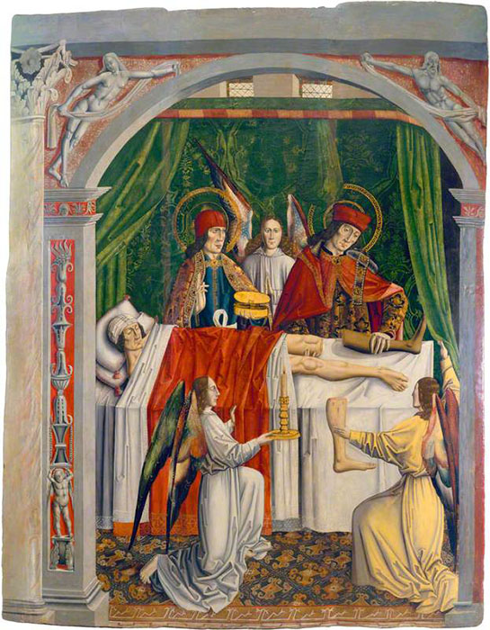 Мечта церковного служителя: Врачи выполняют чудесное исцеление пациента, пересаживая ему новую ногу. Автор неизвестен.
