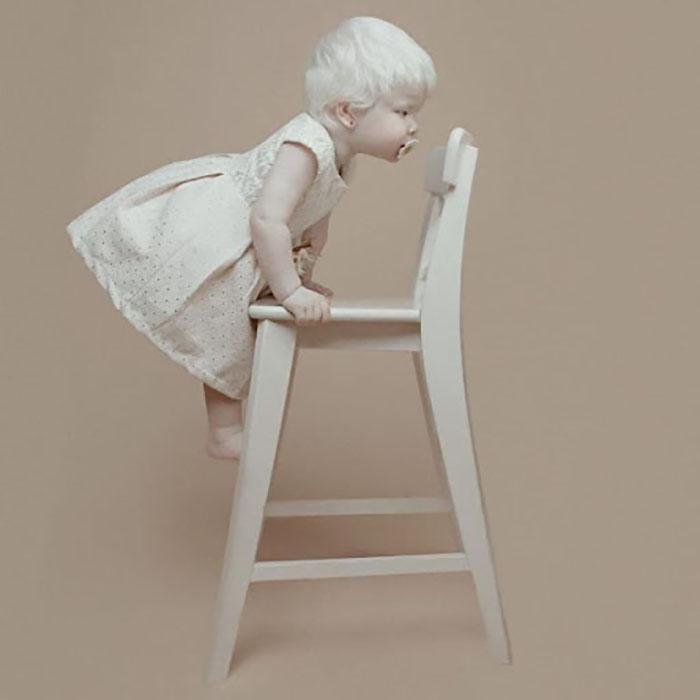 Как оказалось, в семье Айман рождались альбиносы.