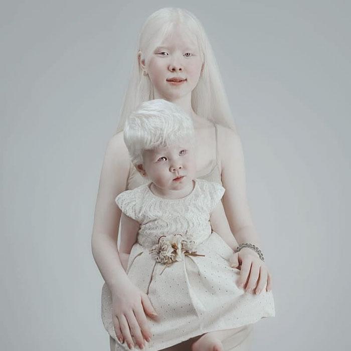 Родителям Асель и Камилы пришлось изучить суть явления альбинизм.