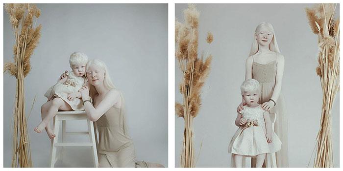 Асель в детстве часто принимали за куклу.