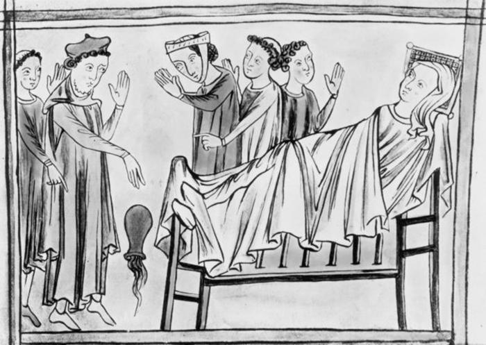 Женщина в постели в окружении врачей, рисунок 14 века.  / Фото: Архив Халтона / Getty Images