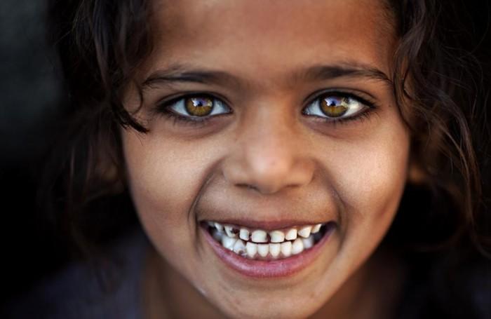 Искренняя улыбка. Фото Alessandro Bergamini.