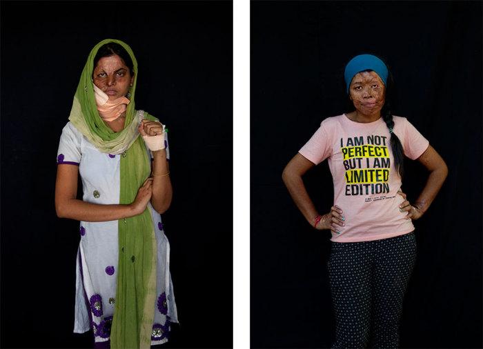Портреты женщин, чьи лица были изуродованы кислотой.  Автор фото: Ann-Christine Woehrl.