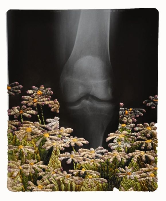 Ромашковое поле. Автор: Matthew Cox.