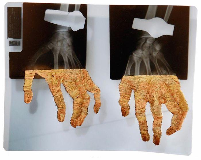 Руки. Автор: Matthew Cox.