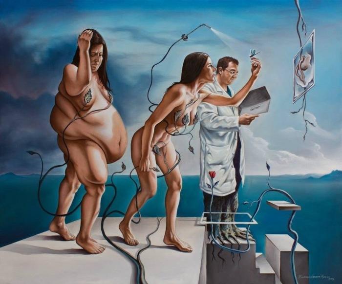 Морбидное ожирение. Автор: Eduardo Urbano Merino.