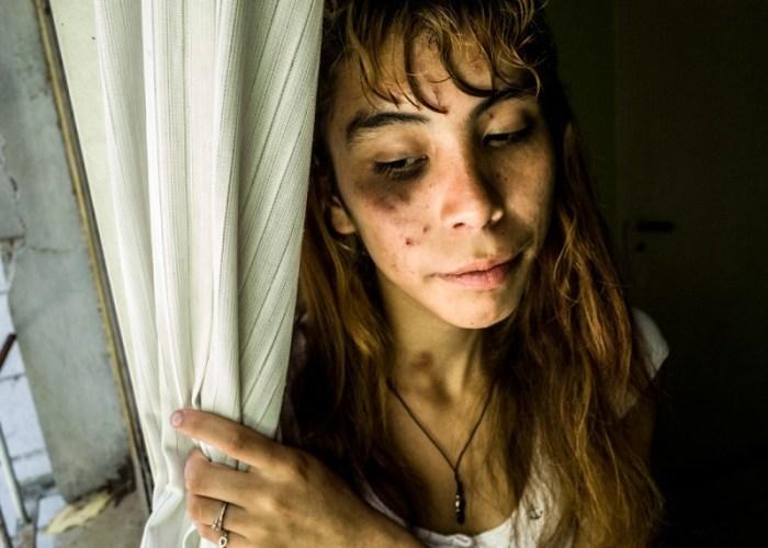 Шестнадцатилетняя К. смотрит в окно после жестокой драки на улице. Автор: Karl Mancini.
