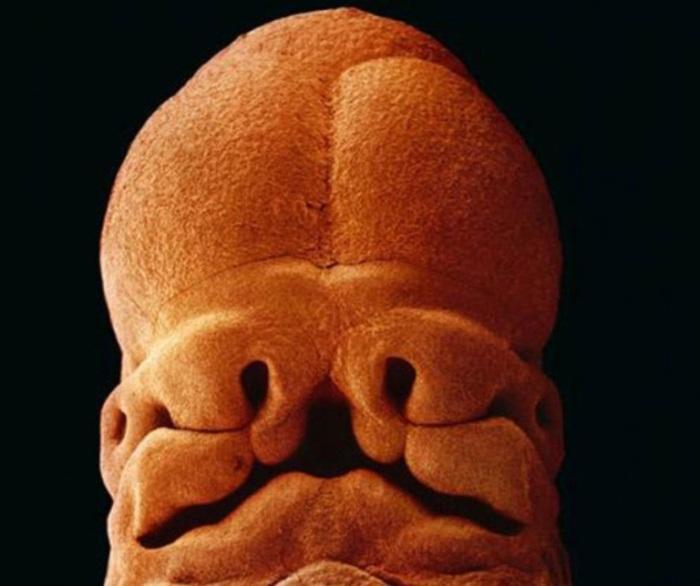5 недель, длина 9 мм, уже угадывается лицо с отверстиями для рта, ноздрей и глаз. Автор фото: Леннарт Нильсон (Lennart Nilsson).