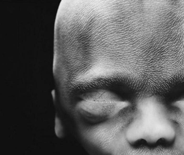 20 недель. Рост около 20 см. На голове начинают появляться волосы. Автор фото: Леннарт Нильсон (Lennart Nilsson).