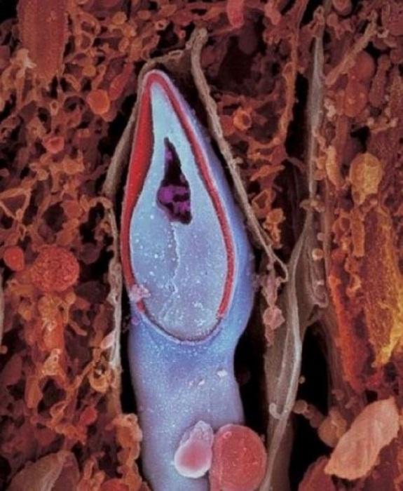 Сперматозоид в разрезе. В головке содержится весь генетический материал. Автор фото: Леннарт Нильсон (Lennart Nilsson).