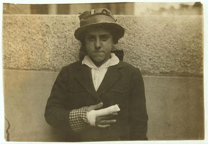 15-летняя Эстель Пуарье с травмированным пальцем. Автор фото: Льюис Хайн (Lewis Hine).
