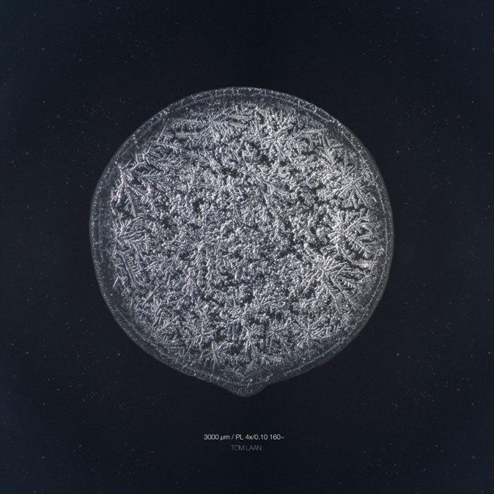 Равнодушие. Слёзы под микроскопом. Автор фото: Maurice Mikkers.
