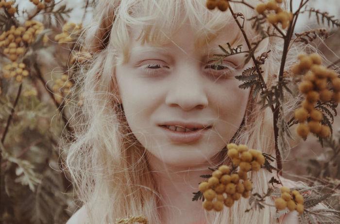 Девочка-альбинос. Автор фото: Мишель де Роса (Michelle de Rose).